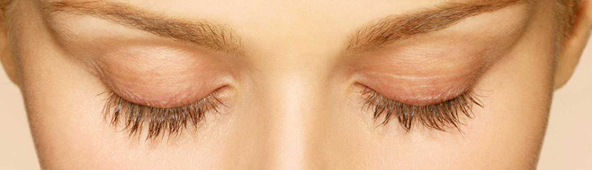 Latisse Eyelash Treatment Before and After Picture