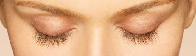 Latisse Eyelash Treatment Before and After Picture - 8 Weeks