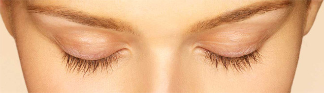 Latisse Eyelash Treatment Before Picture