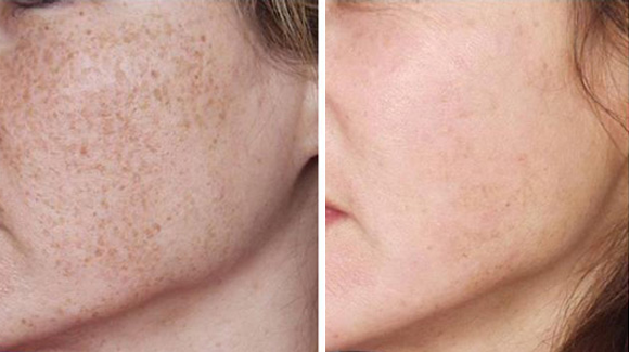 IPL Freckles, Laser Treatments Home Design Ideas